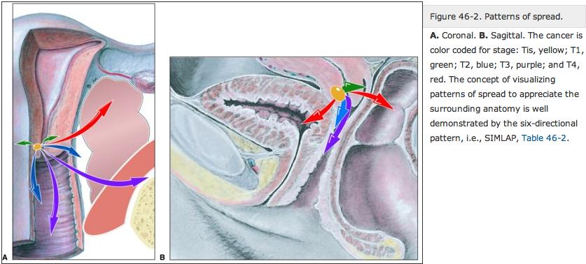 Cervical Cancer - Radiation Oncology